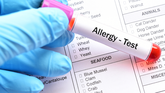 Are Food Sensitivity and Allergy Tests Reliable?
